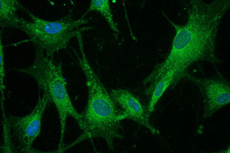 Newcastle disease virus bioimage
